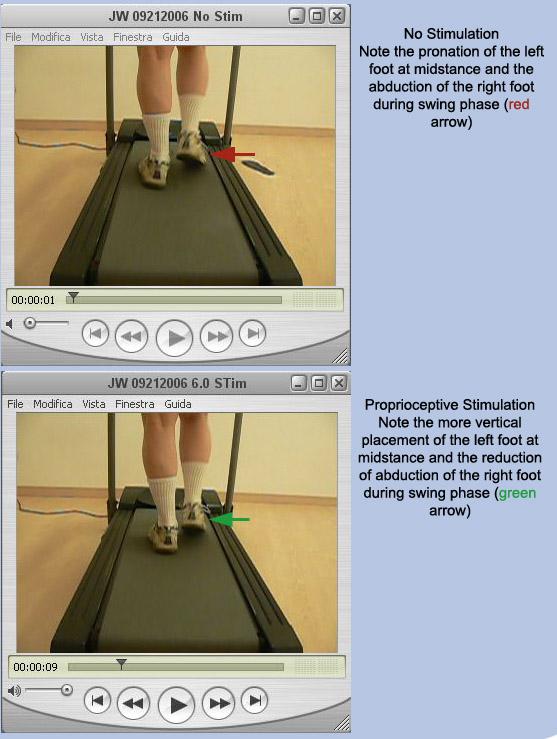 Treadmill Analysis - Case 3 demonstrating improvement using ProStims in RFS