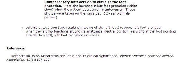 File:Compensatory Anteversion to decrease intoeing.jpg