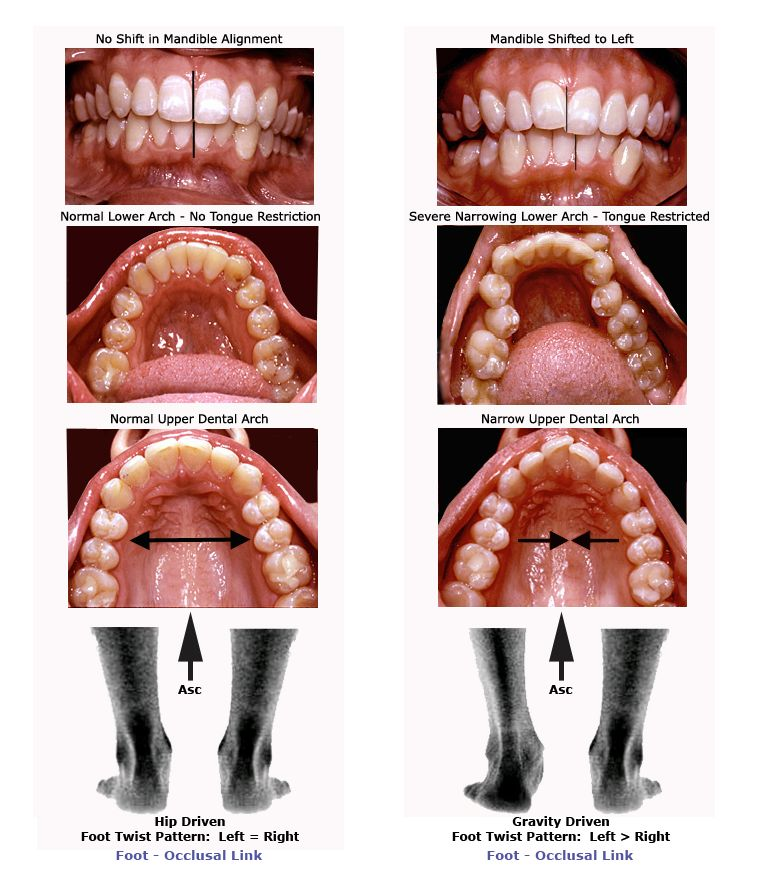 Dentition impacted by foot motion Photos