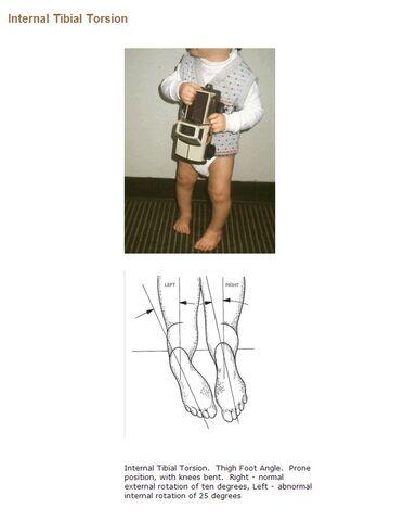 File:Internal Tibial Torsion.jpg