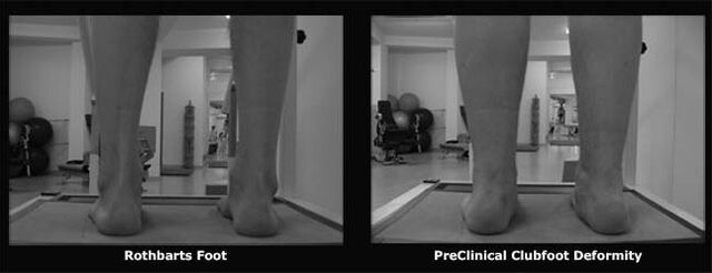 File:Knees Straight.jpg