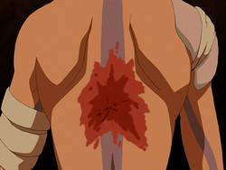 Aang's scar.png