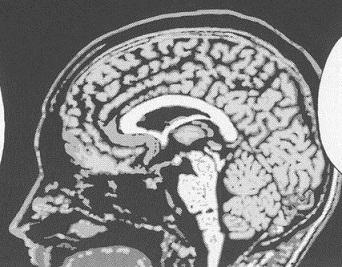File:BAALO03 67 Brain x-ray.jpg