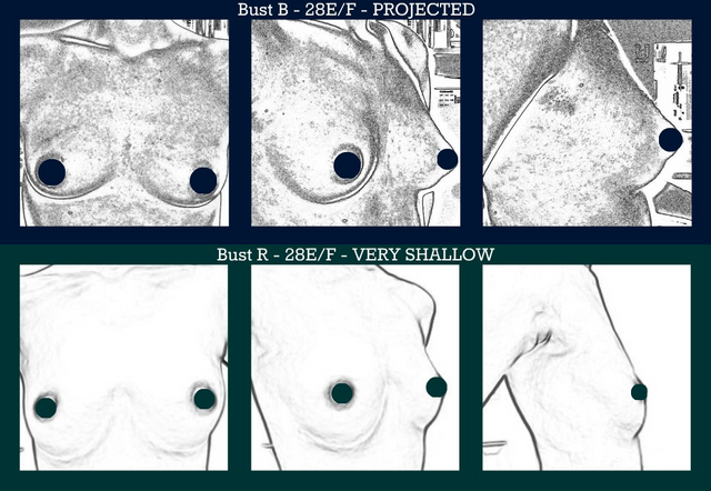 File:Projected vs shallow breasts, same size.png