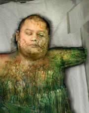 Tiberium Infected Human