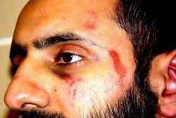 Saudi Prince Injured
