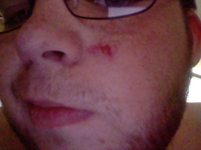 File:Collin-Face Scar.jpg
