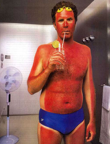 File:Sunburn time.jpg