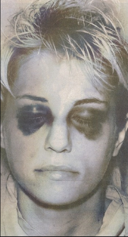 File:Homolka black eyes.png
