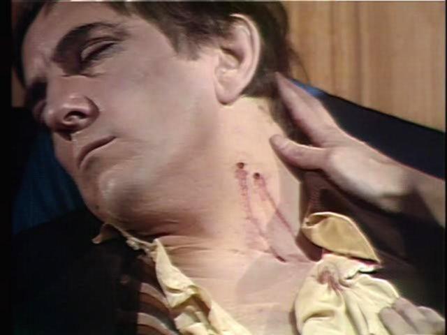 File:Barnabas bitten2.jpg