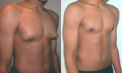 File:Adolescent with Gynecomastia.jpg