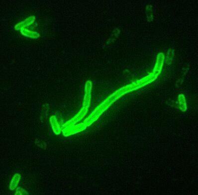 Yersinia pestis fluorescent