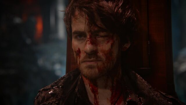 File:Once Upon a Time - 5x13 - Labor Of Love - Bloody Hook.jpg