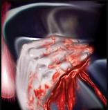 Bleed Pic