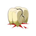 Chafer Tooth