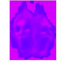 Penit hedon