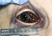CIR eye