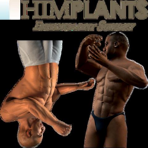 Archivo:Himplantsenhancementsurgery texture1out.png