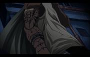 Scar-arm