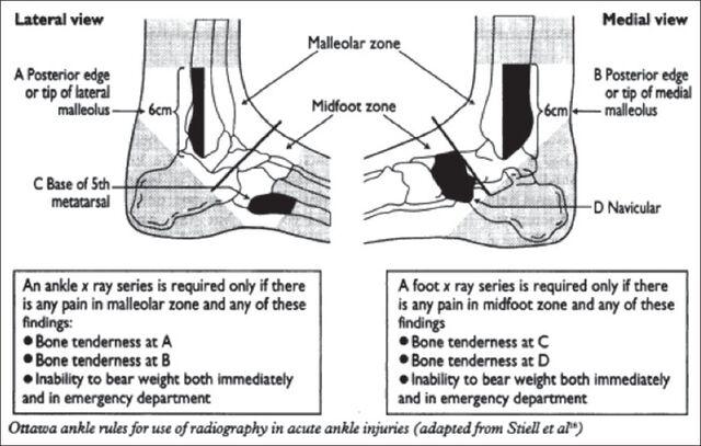 File:Ottawa ankle rules.jpg
