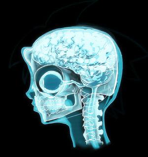 Timmy brainscan