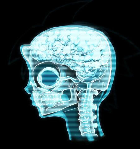 File:Timmy brainscan.jpg
