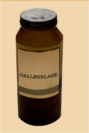 Gallenblasegw