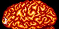 Brain Golem
