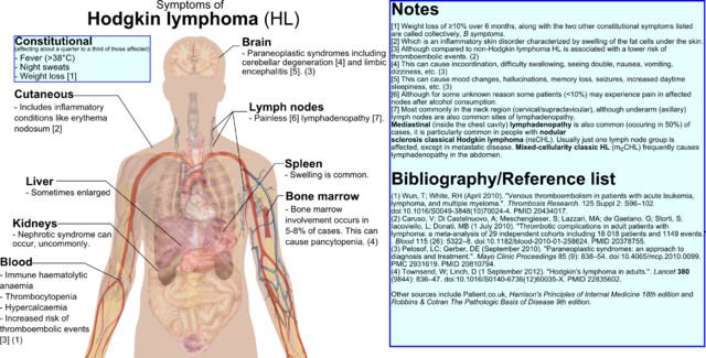 File:Hodgkin lymphoma - symptoms2.png