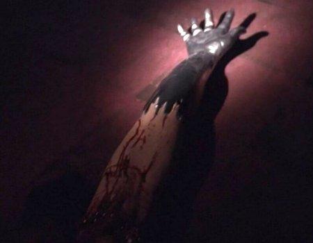 File:Danny Pine's severed arm.jpg