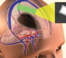 Cerebral Implant