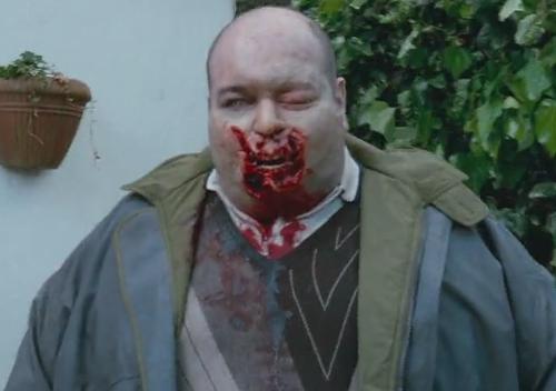 File:Hulking zombie.png