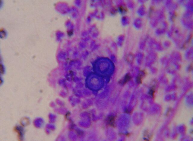 File:Blastomycosis cropped.jpg