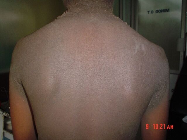 File:Familial acanthosis nigricans2.jpg