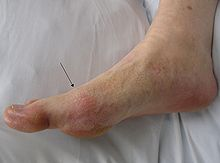 File:220px-Gout2010.jpg