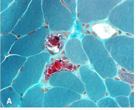 File:Ragged red fibers in MELAS.jpg