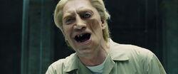Silva's disfigurement