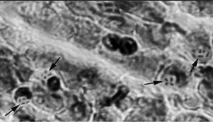 File:Reptile blood cells.jpg