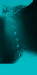 File:Xray neck side.png