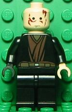 Anakin Skywalker burned