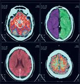 File:Brain ct.png