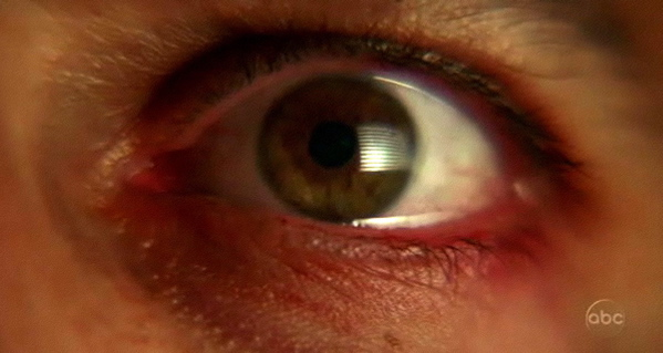 File:Desmonds eye.jpg