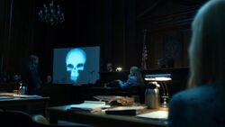 Nelson skull