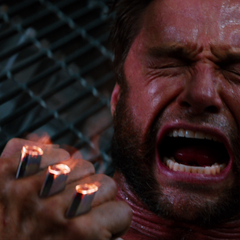 Logan screams in pain as his claws are severed