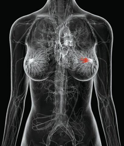 File:Breast-cancer225.jpg