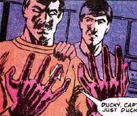 Scotty's injured hands