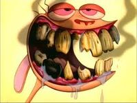 Rens toothache