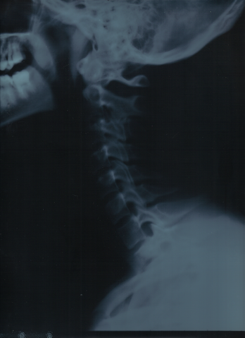 File:Cervical coloumn.png