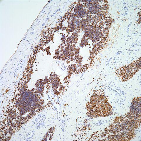 File:Desmin.alveolar rhabdomyosarcoma.4.jpg