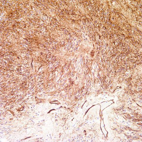 File:Cd34.mammary myofibroblastoma.1.jpg